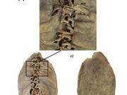 亚美尼亚境内发现5500年前皮鞋(组图)